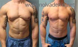 differences between arimidex and nolvadex